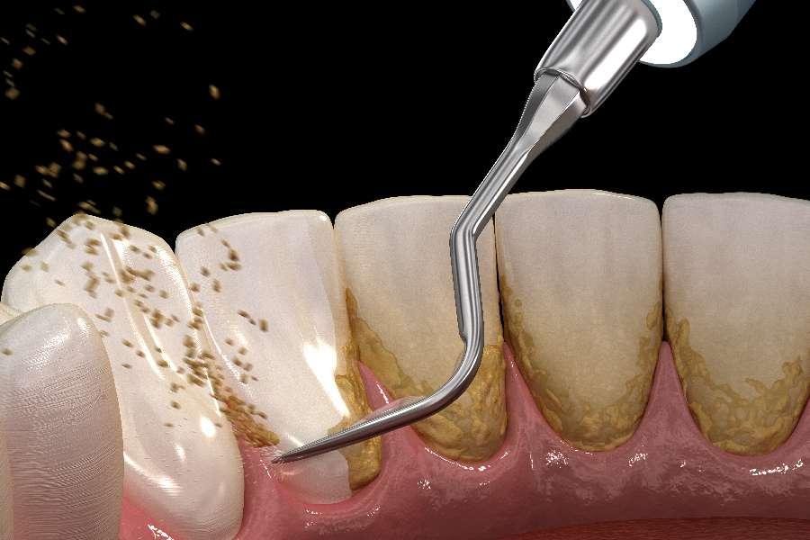 自分 で 歯石 取り